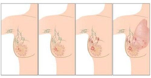知っておきたい乳がんの主な原因
