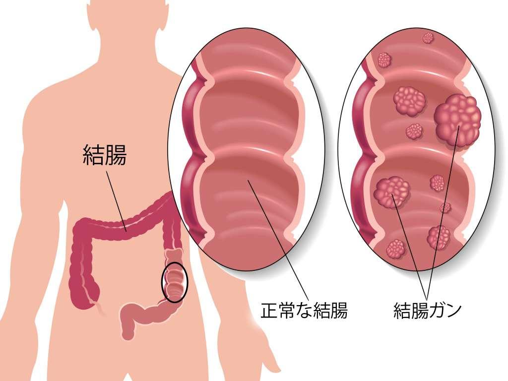 結腸ガン予防のための5つのヒント