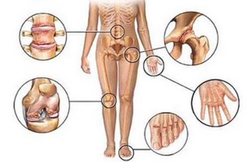 関節痛のための抗炎症自然療法5種