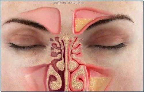 鼻づまりを1分間で軽くする方法