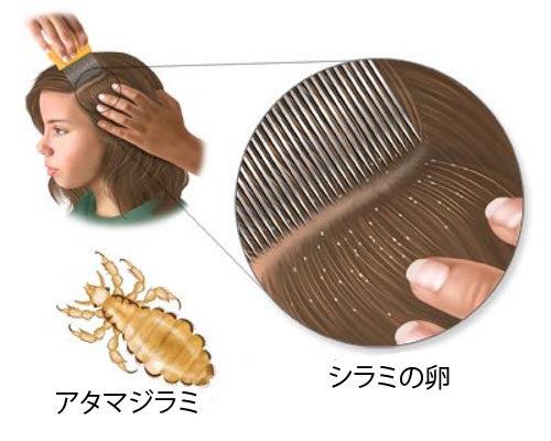 シラミを除去する5つの自然療法