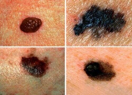 皮膚がんを予防するために