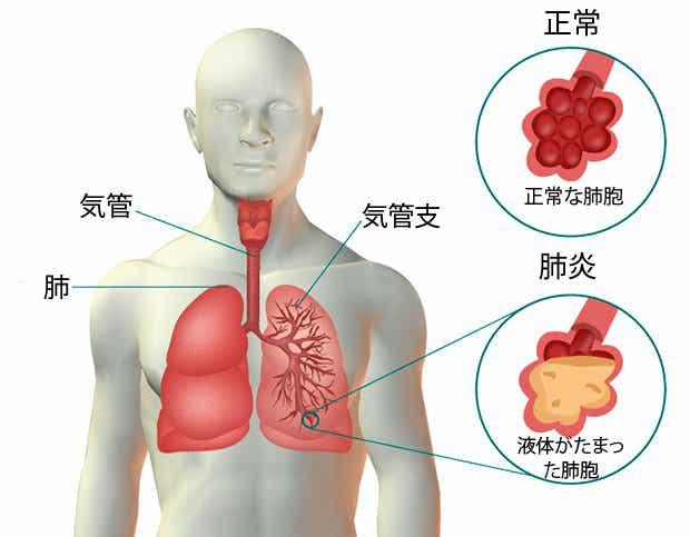 知っておきたい肺炎の症状と自然療法