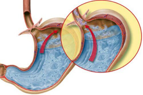 胃酸の逆流に効く6つの自然療法