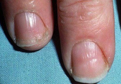 甲状腺異常:割れやすい爪