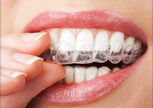 歯ぎしりを防ぐ4つの方法