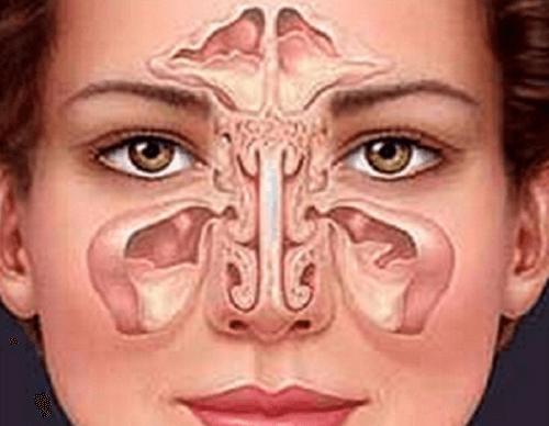 蓄膿症(副鼻腔炎)を自然治癒力で治す方法