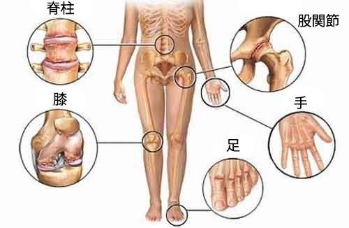 もう関節痛に悩まない!/5つの自然療法