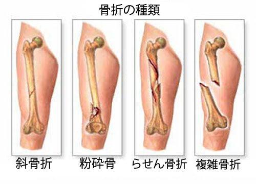 知っておくべき原発性骨腫瘍の主な症状5つ