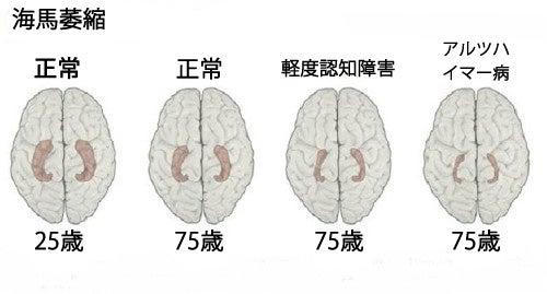 知っておきたい/アルツハイマー病の初期症状