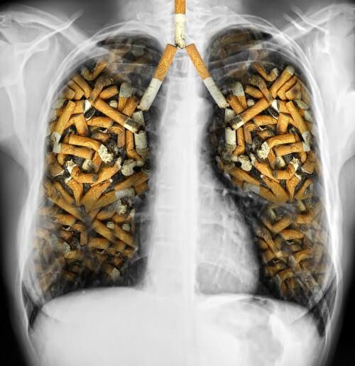 タバコの悪影響と禁煙