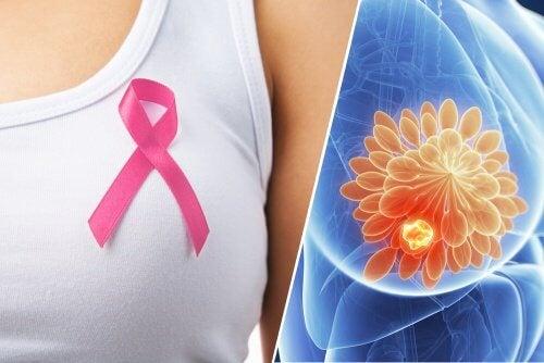 ご存知ですか?!乳がんの10の初期症状