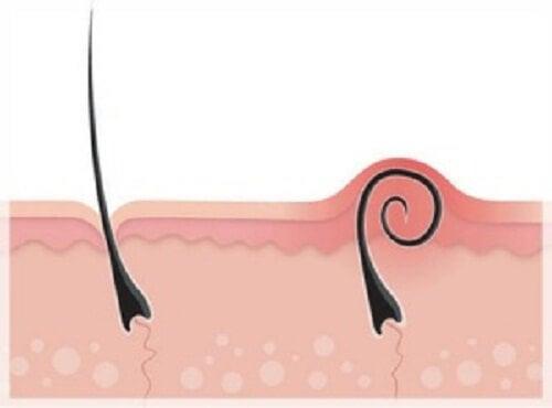 内方発育毛を処理し防ぐ方法
