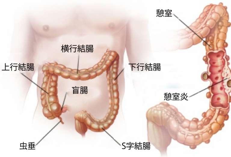 大腸憩室症(けいしつしょう)と憩室炎:症状と自然療法