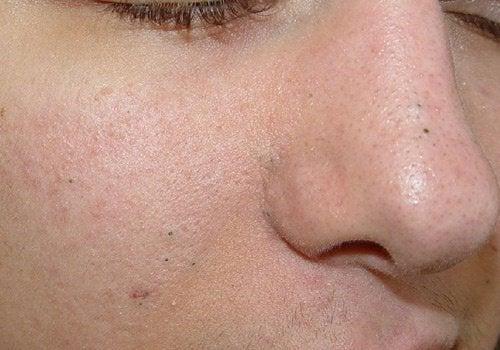 毛穴の黒ずみ、イボ、シミに効く/自然療法