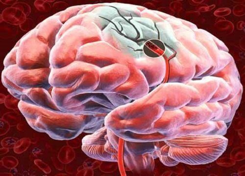 脳への血流を良くする5つの方法