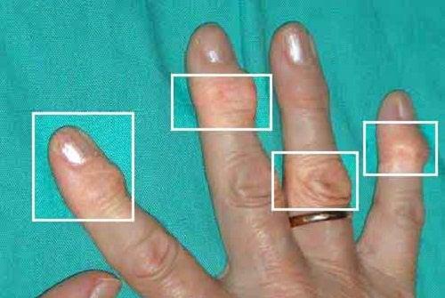 家でできる関節炎の治療法