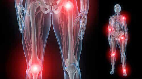 夜になるとひどくなる関節痛の対処法