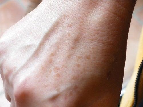 手の甲のシミを目立たなくする方法