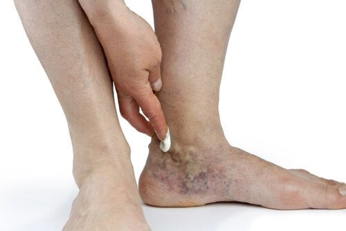 2-ankle-swelling