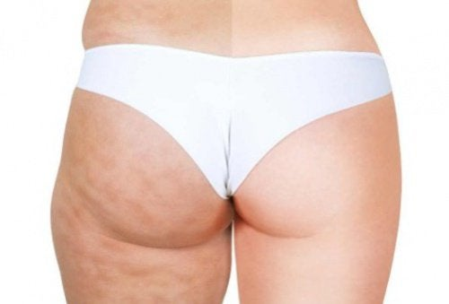 2-cellulite-before-and-after
