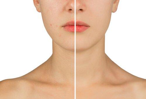 2-fight-acne
