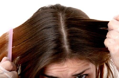 2-greasy-hair