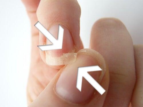 爪が剥がれる