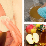1-apple-cider-vinegar-skin-benefits