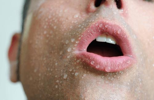 4-sweating