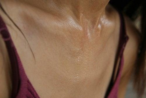 5-sweating
