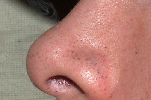 イチゴ鼻を自然に解消する方法
