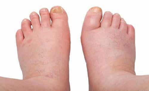 足首や足の腫れやむくみに効く/6つの方法