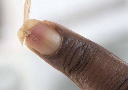 もろい爪を強くする方法