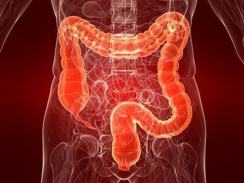 潰瘍性大腸炎: その原因、症状、治療法とは