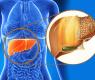 1-fatty-liver-disease