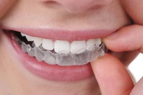 歯ぎしりに悩む人のためのアドバイス