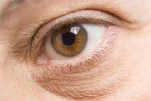 目の下のくまを/明るくしたり取り除く方法