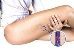 2-varicose-veins