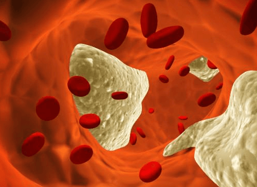 血中のコレステロール