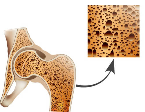 bone-care-and-preventing-osteoporosis
