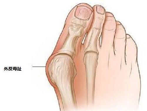 外反母趾の予防法