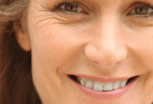 笑い皺の目立つ女性