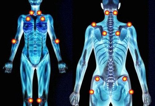 線維筋痛症の5つの初期症状