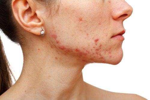 4-acne