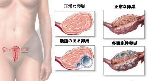 女性が知っておくべき卵巣嚢腫のこと