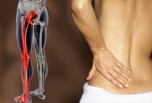 坐骨神経痛に効く6つのエクササイズ