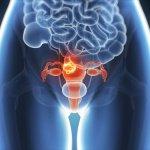 静かなる病気~子宮内膜症の症状とそのリスク