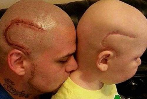 「これで同じだ」/息子の手術跡と同じ形のタトゥーを入れた父