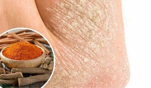 乾癬に効く7つの方法